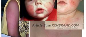 Baby Skin Disease | Article Base KCNBRAND.COM